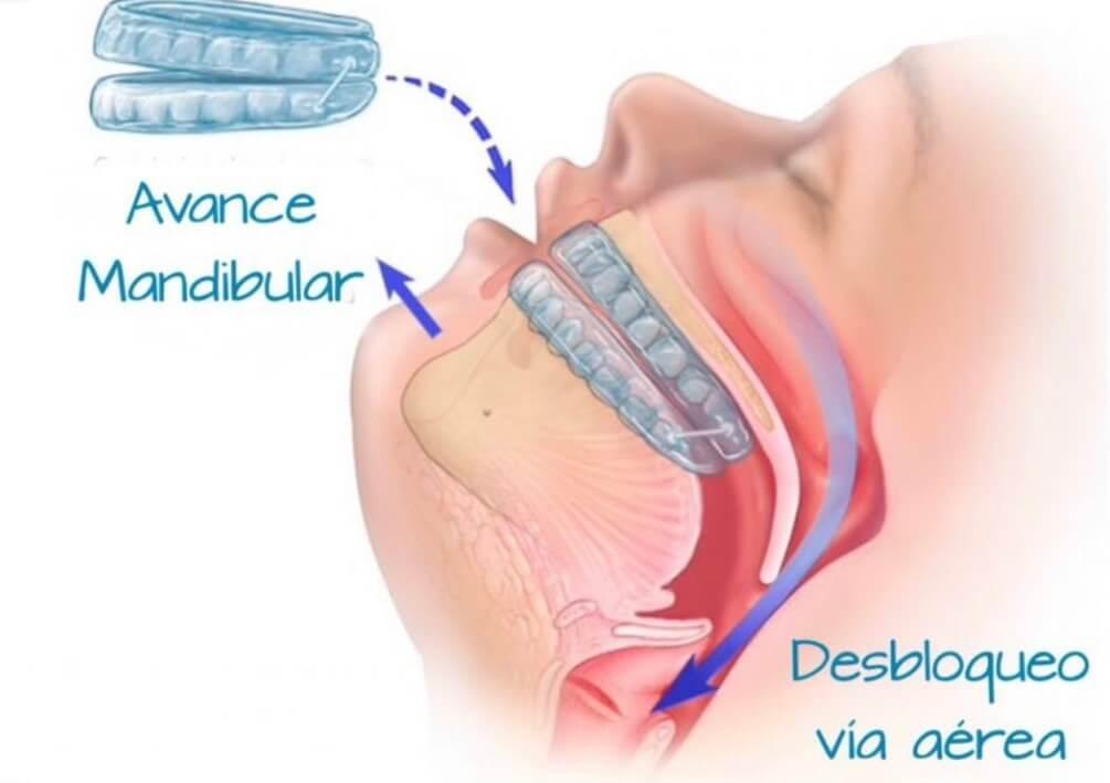 dentista en dubai español vivir